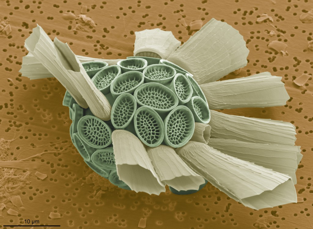 SEM image of Scyphosphaera porosa, a rare deep-photic coccolithophore collected from the plankton on AMT Cruise 18 (November 2008, S. Atlantic, 130m depth). Imaged by Jeremy Young, University College London, UK, imaged at EMMA unit, The Natural History Museum, London.